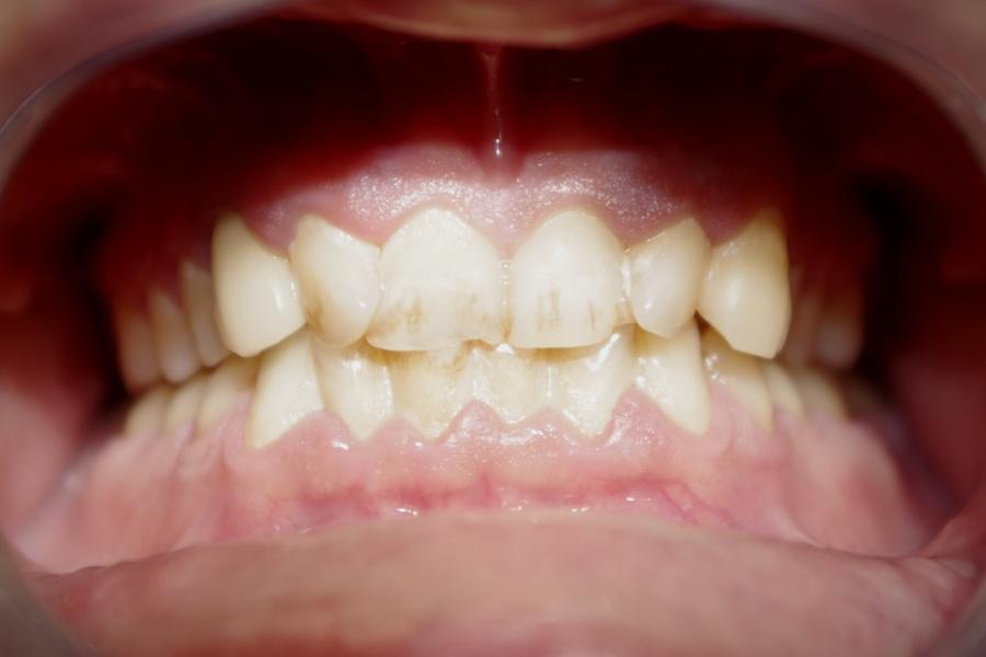 Before-Parodontologie
