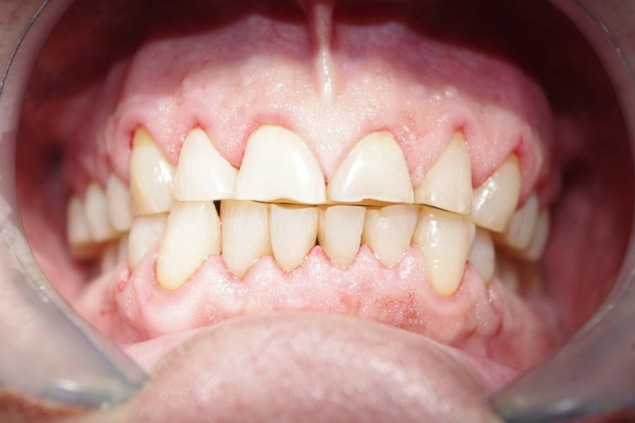 After-Parodontologie