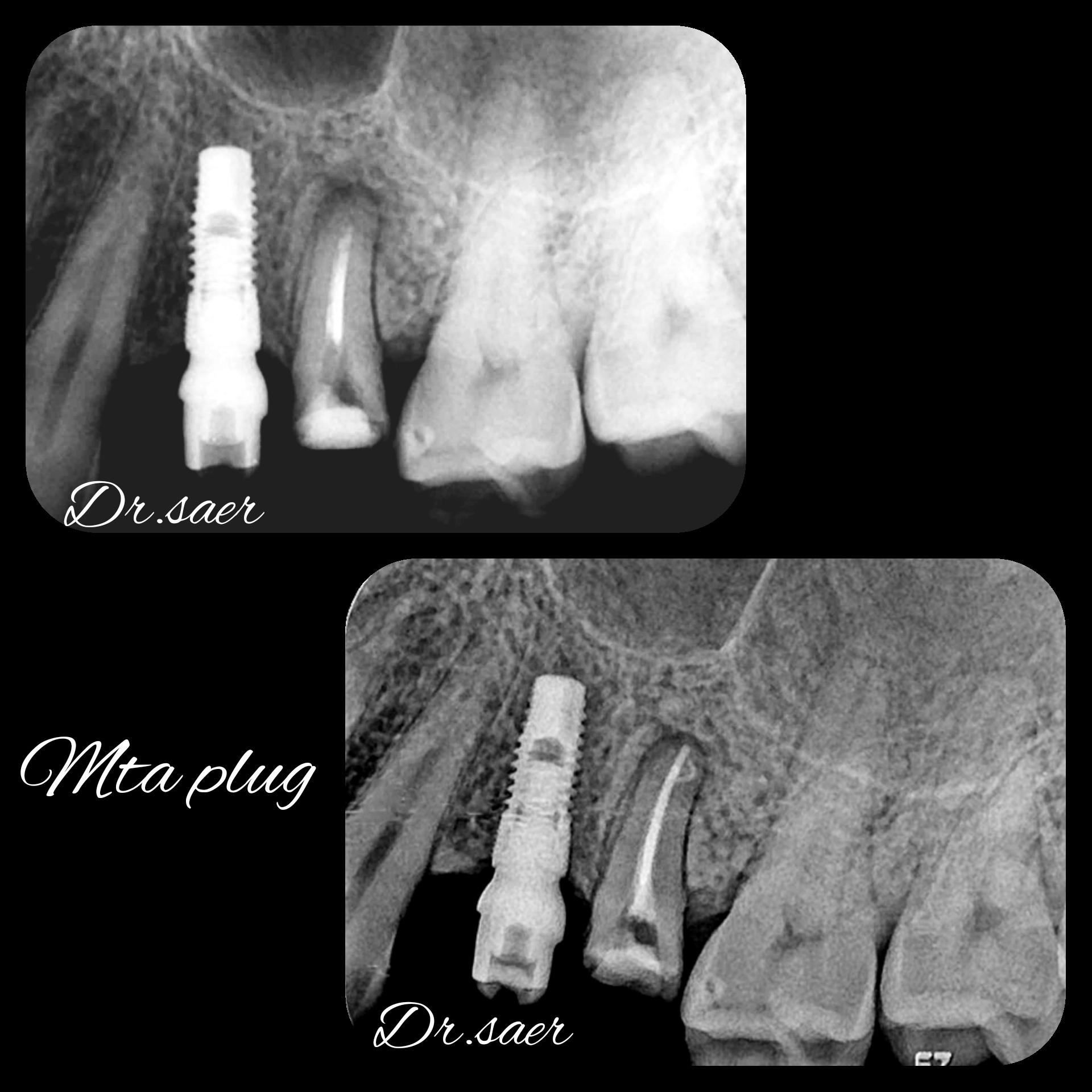 Clinica Excedent Lucrare endodontie microscopica dr. Saer Khalil 04