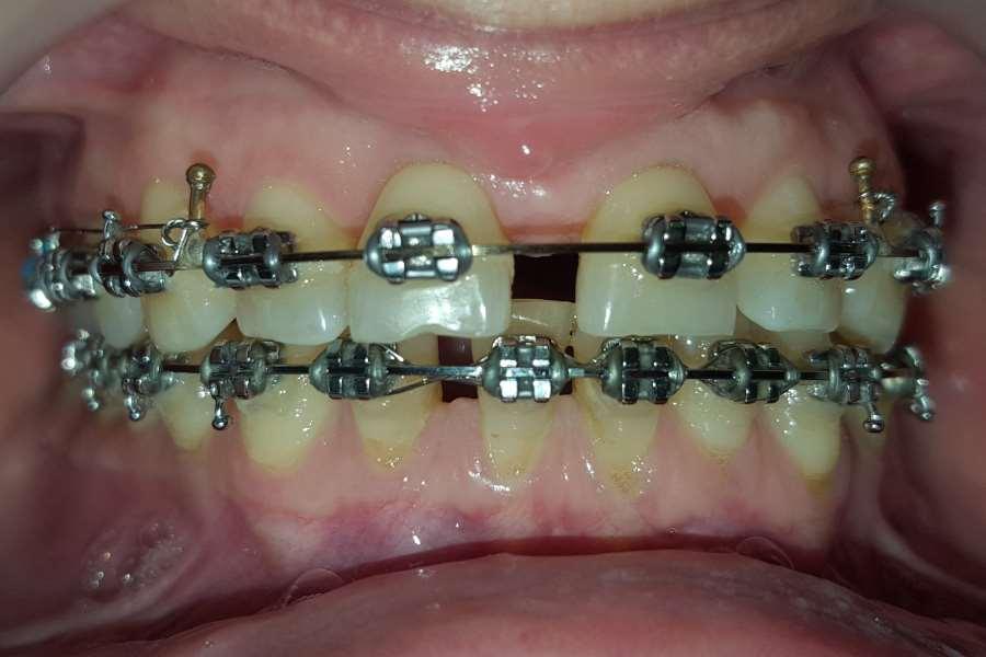After-Ortodontie