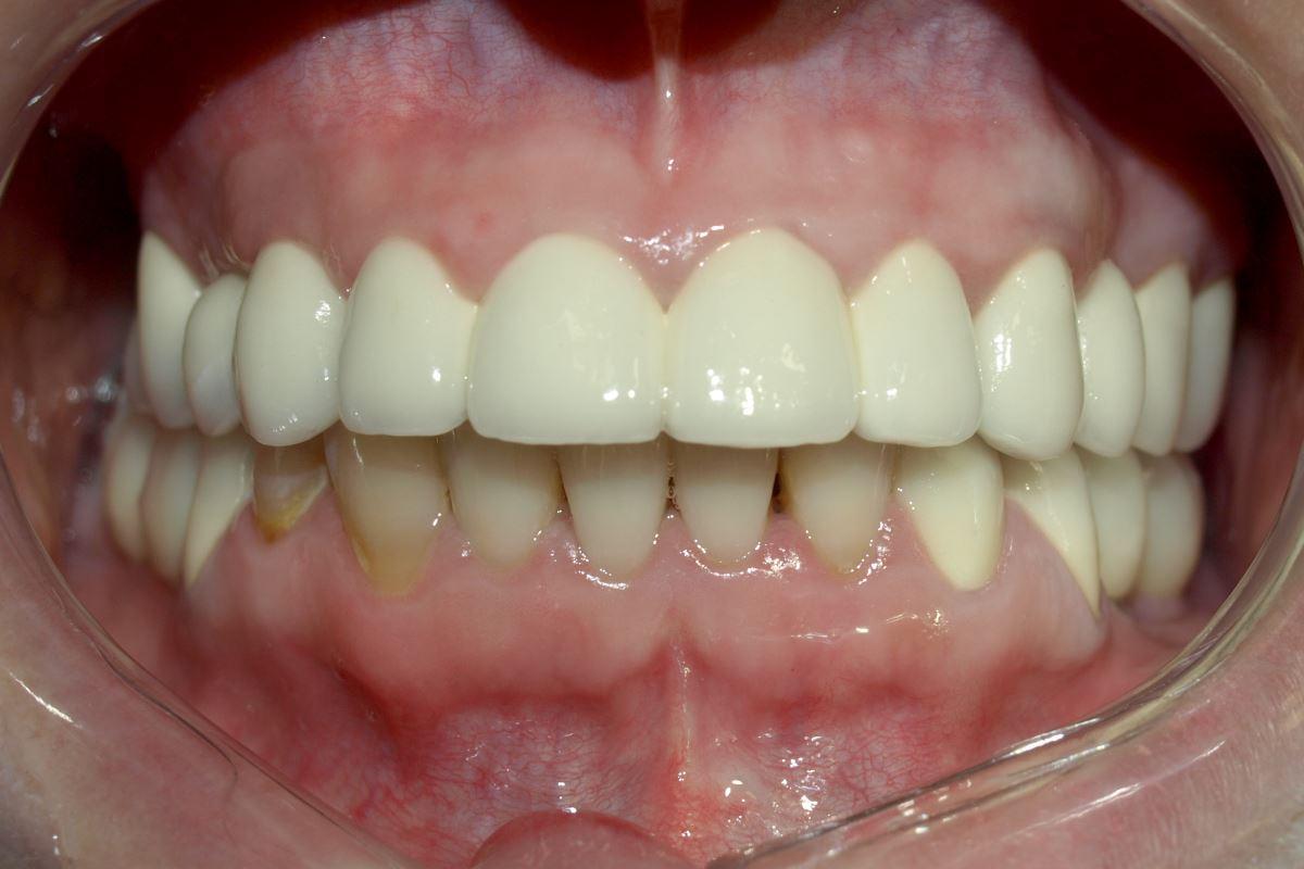 After-Lucrare pe implanturi Zimmer