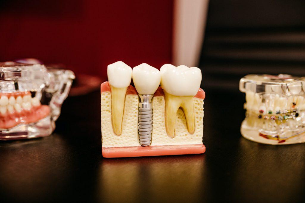 ce este implantul