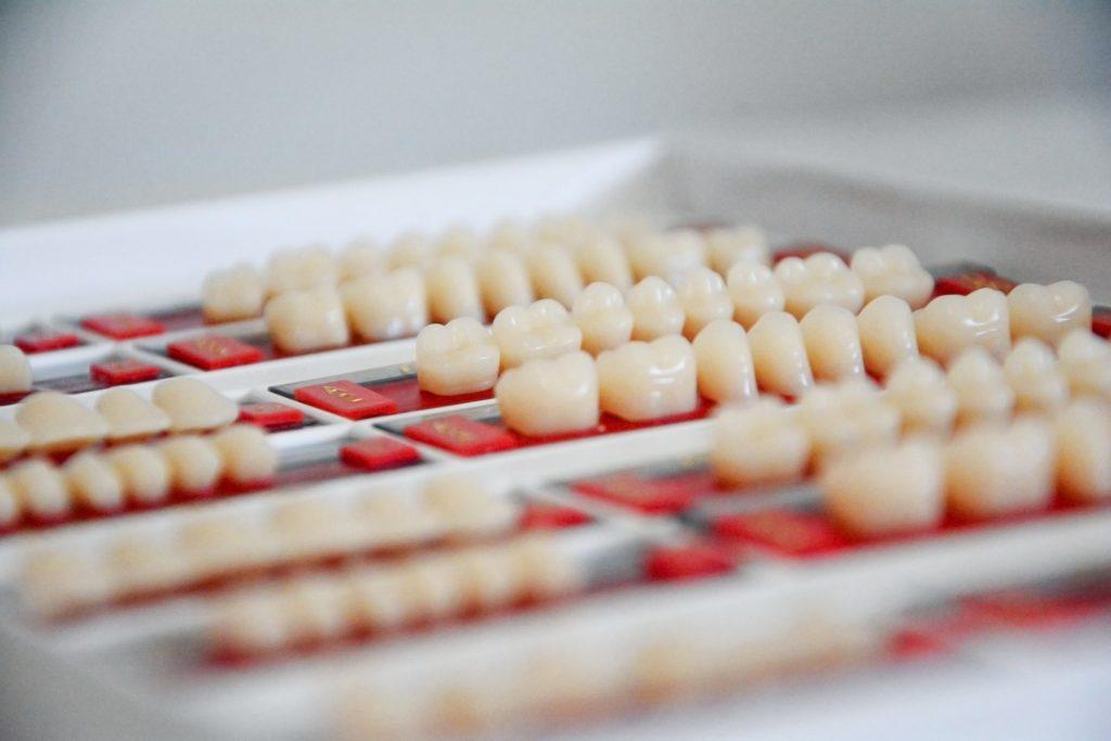 Pacientul revine la cabinet pentru instalarea protezei sau a coroanelor dentare