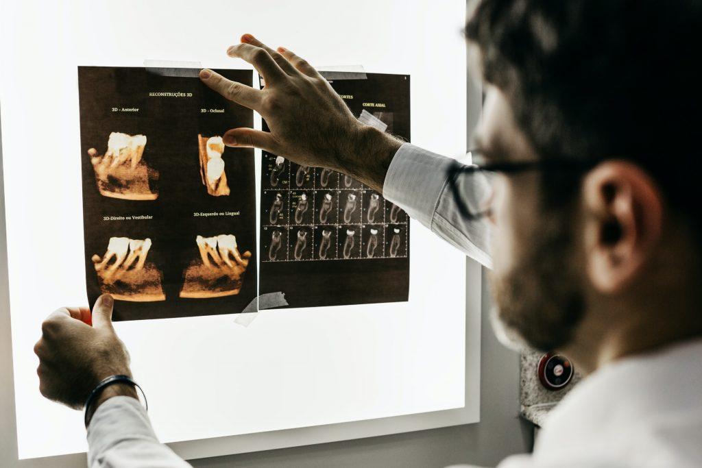 prima consultatie pentru implantul rapid